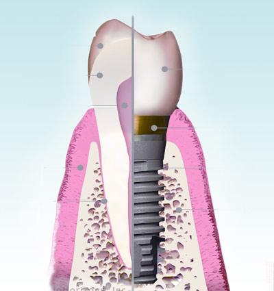 Implantologie - Polyclinique dentaire Européenne - Tours - Région Centre - Spécialités dentaires