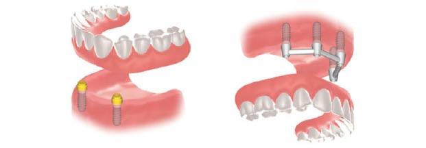 Prothèses dentaires - Polyclinique dentaire Européenne Tours- Spécialités dentaires à Tours