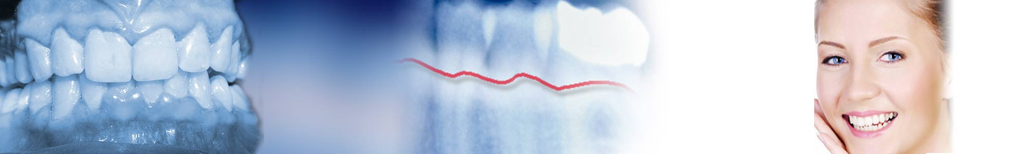 parodontie- Polyclinique dentaire Européenne - Tours - Région Centre - Spécialités dentaires