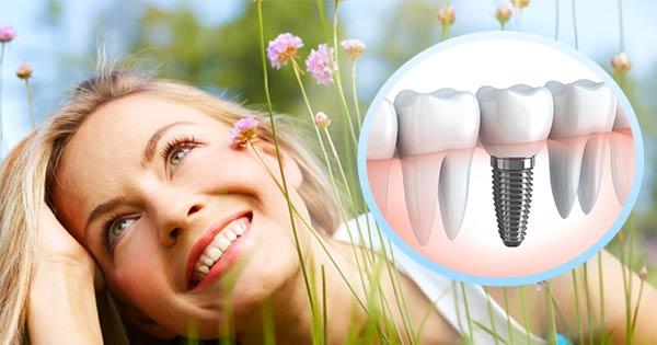 Implants dentaires à Tours - Polyclinique dentaire Européenne - Tours - Région Centre - Spécialités dentaires