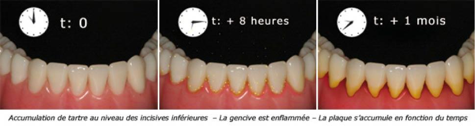 plaque dentaire - Polyclinique dentaire Européenne - Tours - Région Centre - Spécialités dentaires