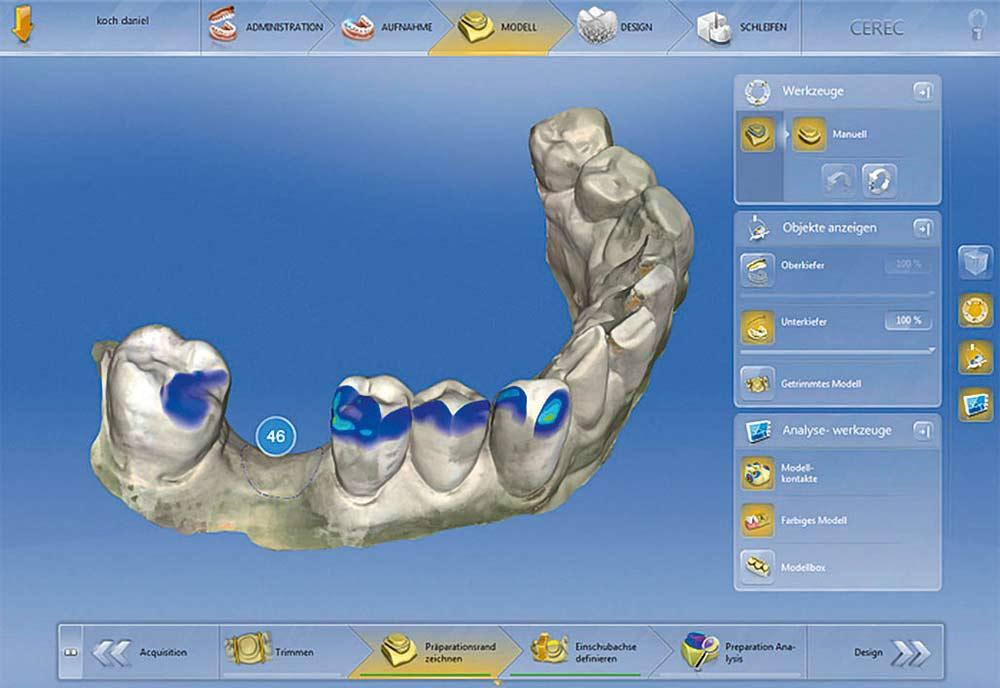 CFAO - Polyclinique dentaire Européenne - Tours - Région Centre - Spécialités dentaires