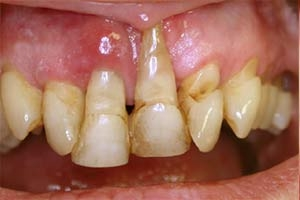 Saignement des gencives - Polyclinique dentaire Européenne - Tours - Région Centre - Spécialités dentaires