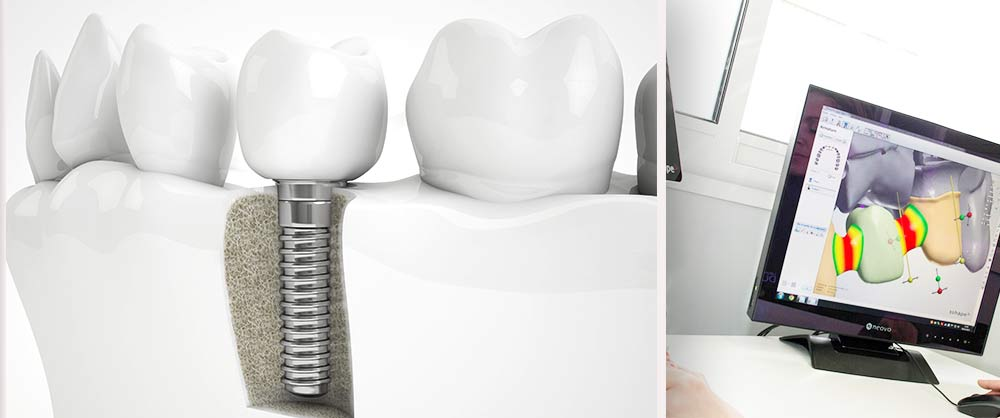 Les implants dentaires - Polyclinique dentaire Européenne - Tours - Région Centre - Spécialités dentaires