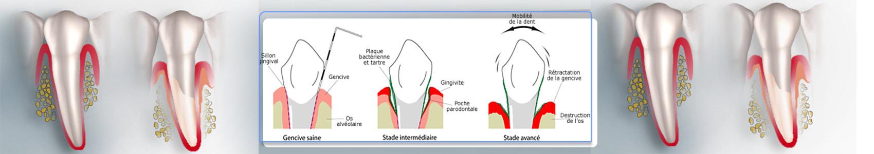 Parodontie- Polyclinique dentaire Européenne Tours- Spécialités dentaires à Tours