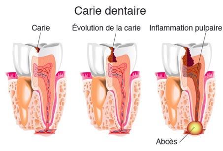 Polyclinique dentaire Européenne Tours- Greffe osseuse, carie dentaire