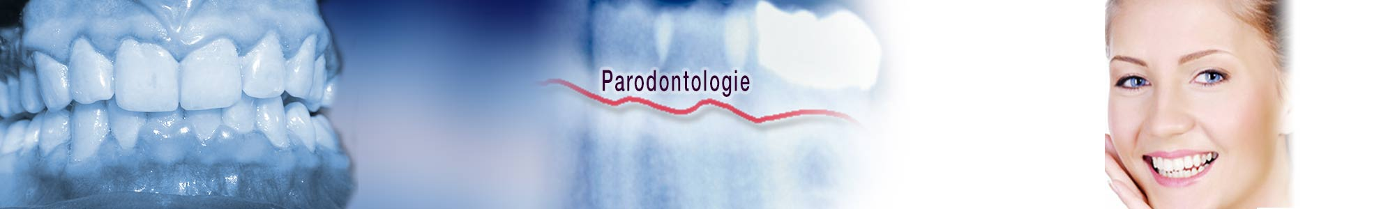 slide-parodontie-1