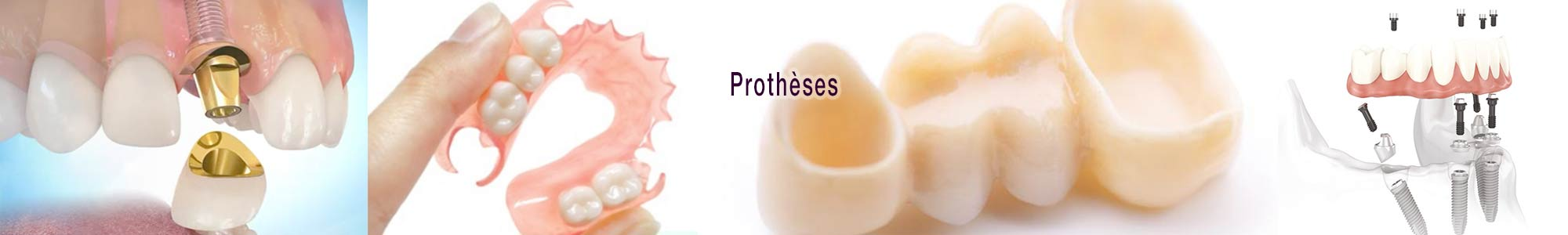 slide-prothese