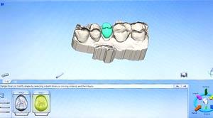 CFAO2 - Polyclinique dentaire Européenne - Tours - Région Centre - Spécialités dentaires