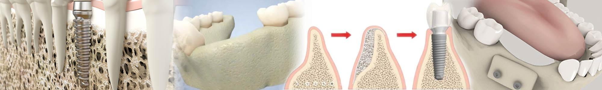 Greffe osseuse dentaire - Polyclinique dentaire Européenne - Tours - Région Centre - Spécialités dentaires