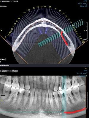 Innovations technologiques - radilogie 3D - Polyclinique dentaire Européenne Tours- Spécialités dentaires à Tours