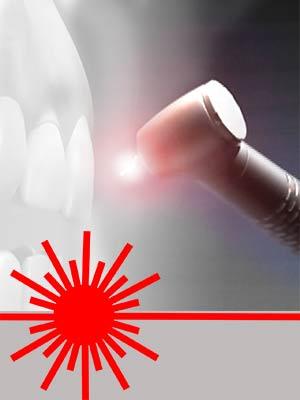 Innovations technologiques - laser - Polyclinique dentaire Européenne Tours- Spécialités dentaires à Tours