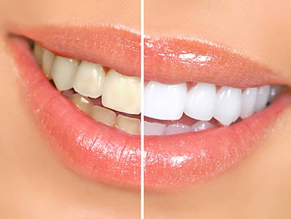 vignette-dentisterie-esthetique2