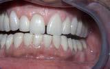 Pose de facettes céramique - Polyclinique dentaire Européenne - Tours - Région Centre - Spécialités dentaires