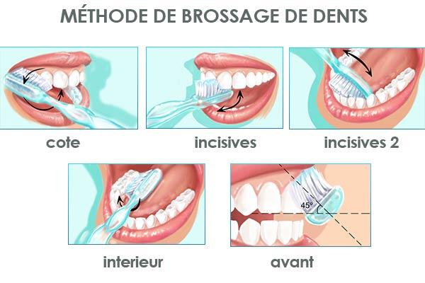 Hygiene buccodentaire- Polyclinique dentaire Européenne - Tours - Région Centre - Spécialités dentaires