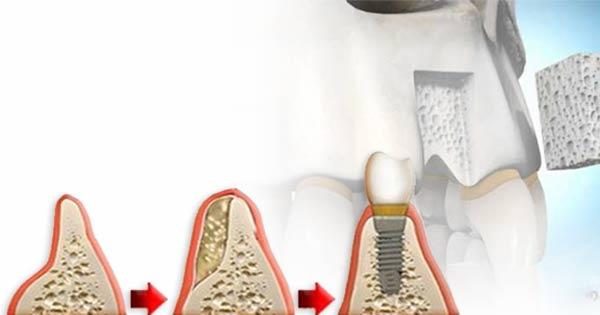 Greffe osseuse - Polyclinique dentaire Européenne - Tours - Région Centre - Spécialités dentaires