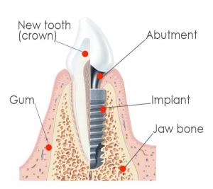 implants7-2