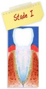 Origine des maladies parodontales - Polyclinique dentaire Européenne - Tours - Région Centre - Spécialités dentaires