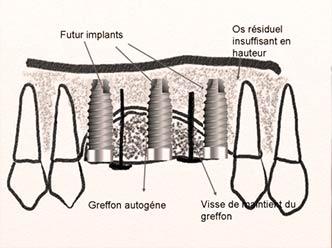 greffe-osseuse-3-hauteur