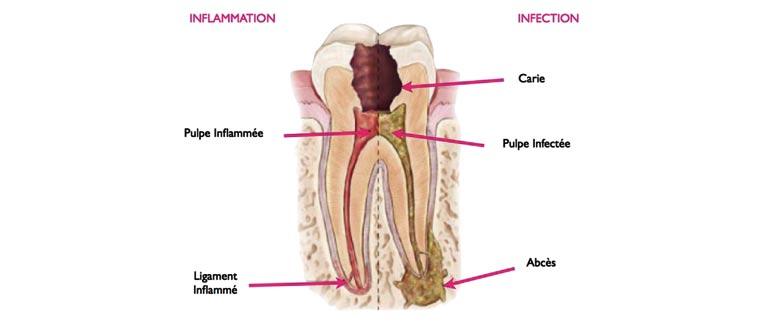 Greffe osseuse - dentiste Tours Région centre