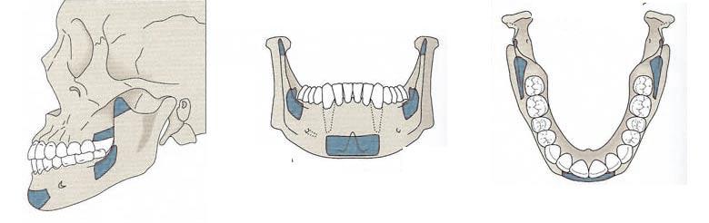 Greffe vosseuse - Polyclinique dentaire Européenne Tours- Spécialités dentaires à Tours