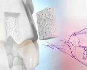 Greffe osseuse - Polyclinique dentaire Européenne Tours- Spécialités dentaires à Tours